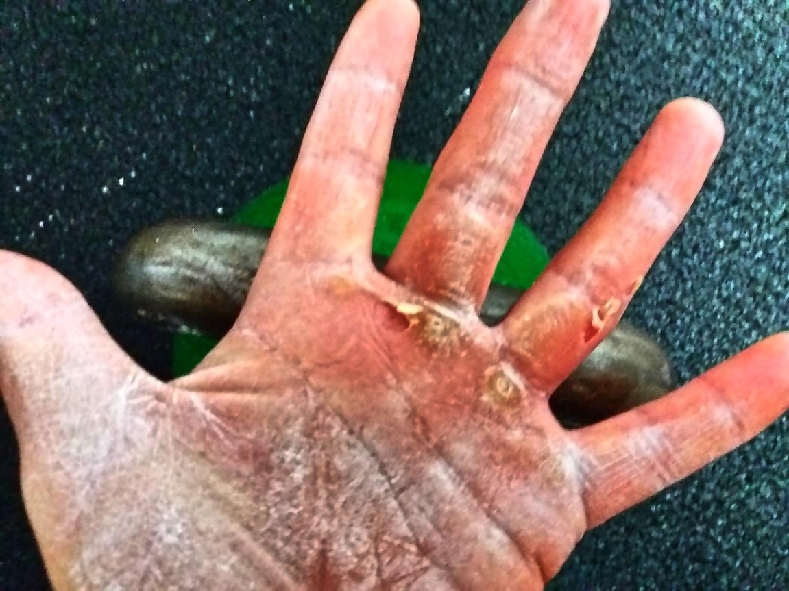 Blasen hände. ⛔ Allergisches Handekzem: Anfassen mit