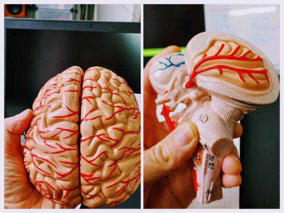 Neuroathletik und Autoimmunerkrankungen, Gehirnmodell